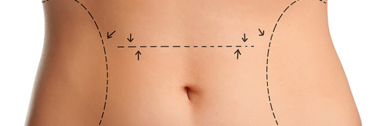 Can Liposuction Help Me Look Younger?